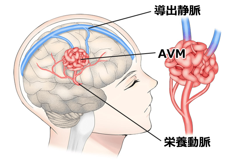 AVM(脳動静脈奇形)