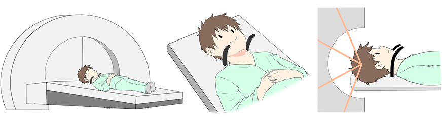 AVM(脳動静脈奇形)定位放射線治療(ガンマナイフ)