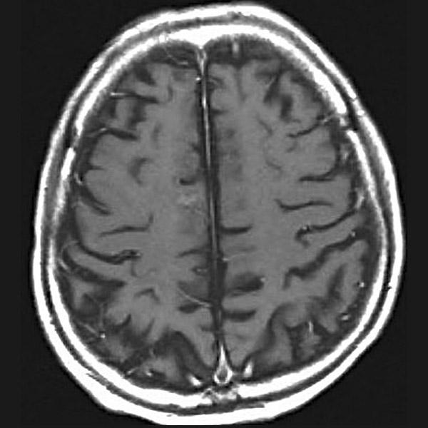 右前頭葉の転移性脳腫瘍症例 3カ月後