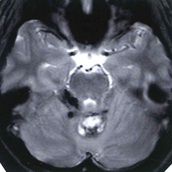 手術中モニタリング画像1