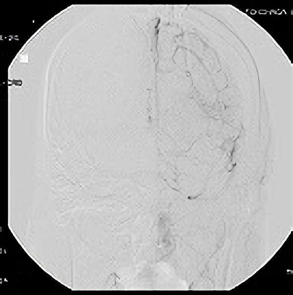 手術後(脳血管撮影画像)1