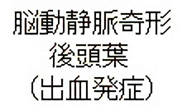 No.283 手術前1