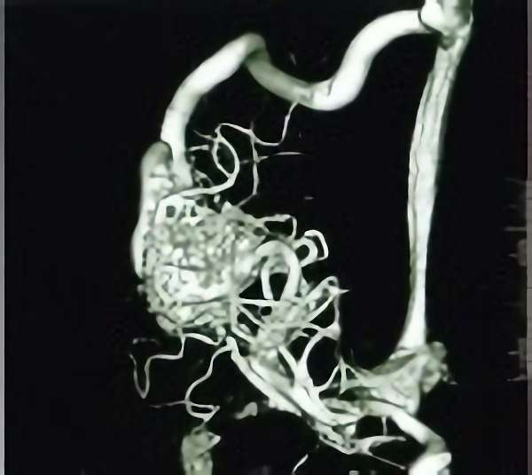 手術前(脳血管撮影画像)3