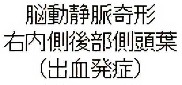 No.285 手術前1