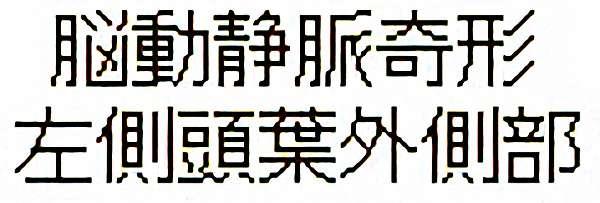 No.314 手術前1