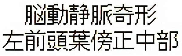 No.316 手術前1