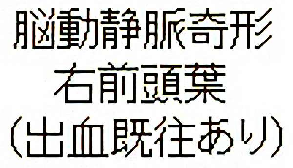 No.326 手術前1