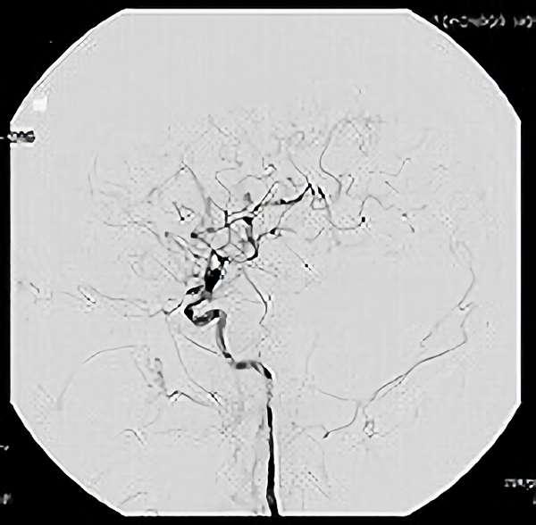 手術後(脳血管撮影画像)2