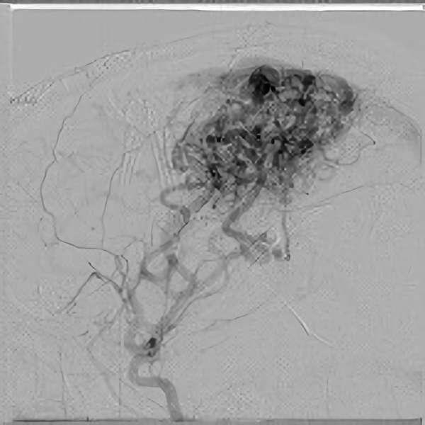 手術前(脳血管撮影画像)2