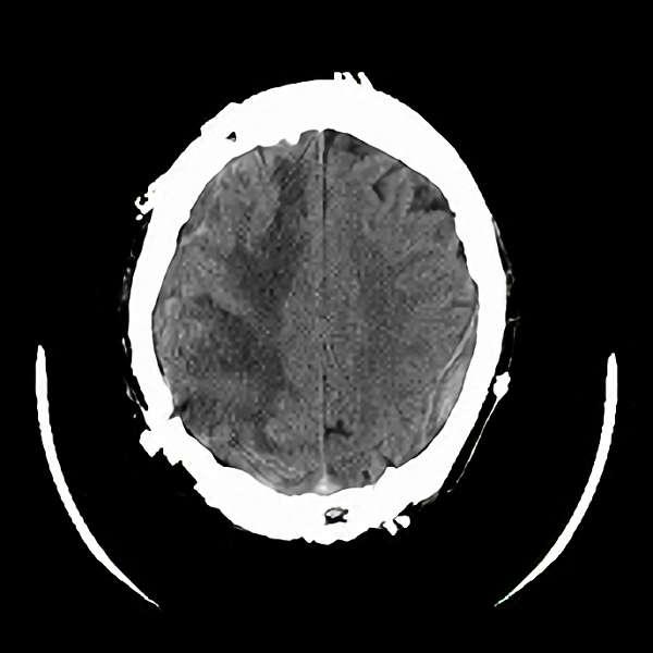 手術後(脳血管撮影画像)3