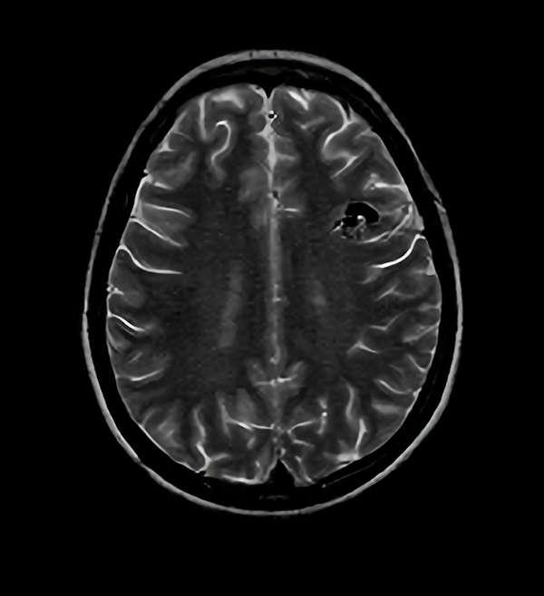 手術前(脳血管撮影画像)4