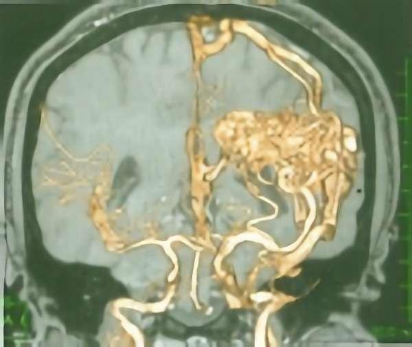 手術前(脳血管撮影画像)1